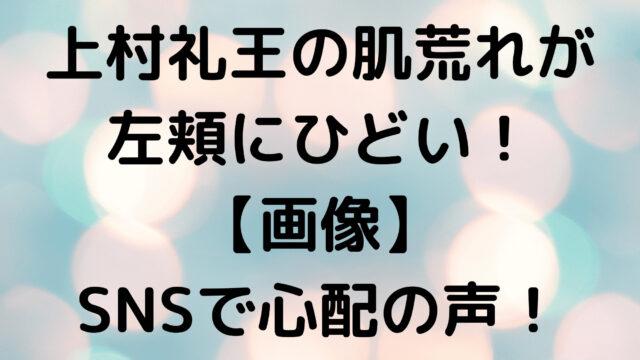 上村礼王の肌荒れが左頬にひどい!【画像】SNSで心配の声!